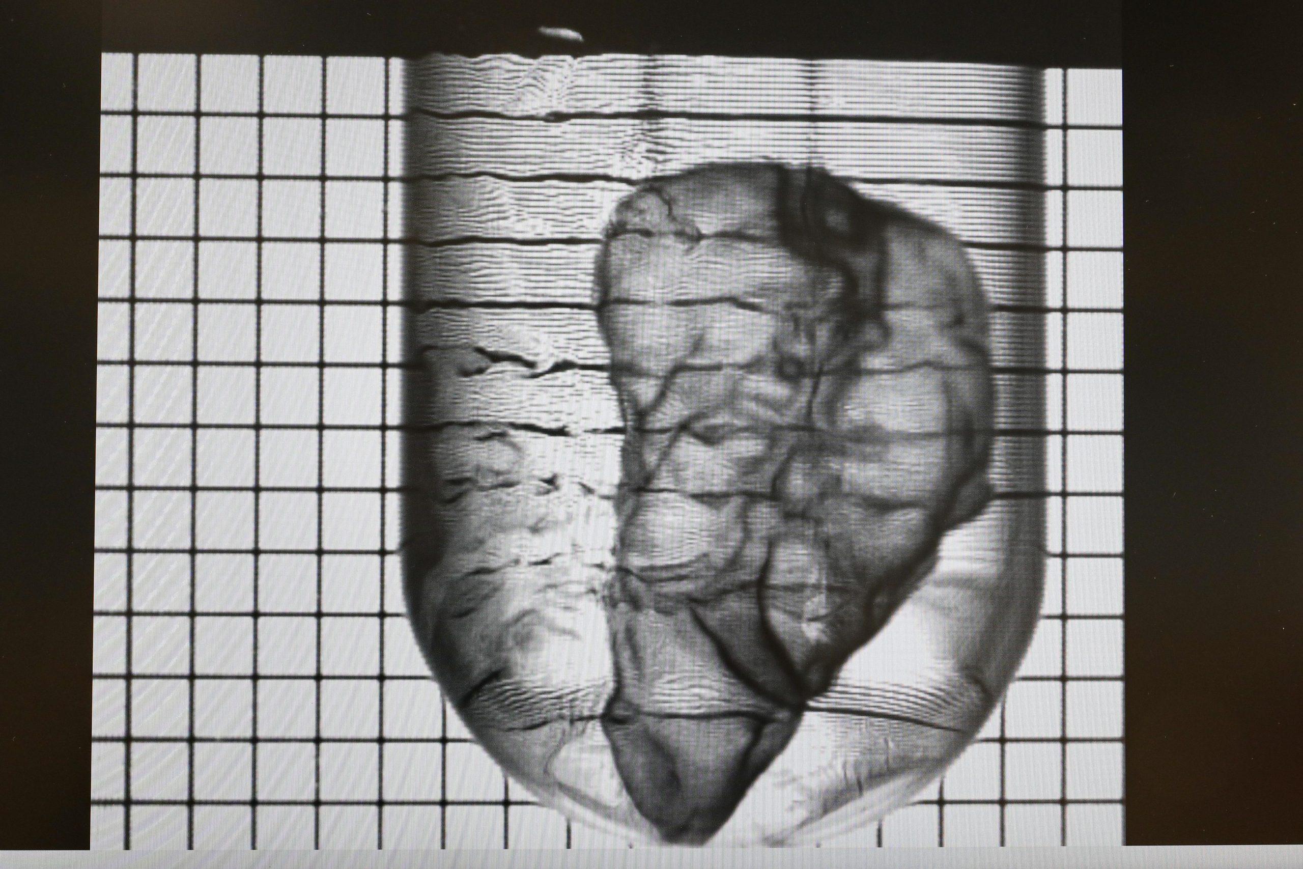 The mini 3D bioprinted pancreas. Image via EPFL / A. Herzog.